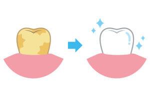 Einzelne dunkle Zähne aufhellen