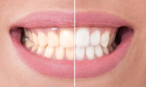 Zähne aufhellen - Bleaching