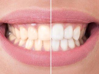 Was tun gegen gelbe Zähne?