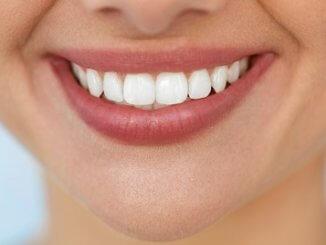 Zähne selber aufhellen