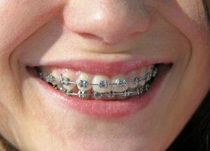 Zahnzusatzversicherung - An Zahnspange und Kieferorthopädie denken