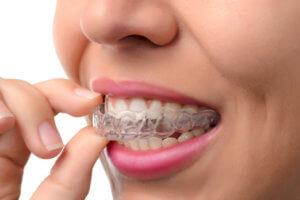 Die Aligner-Schiene ist die unsichtbare Zahnspange zur sanften Korrektur der Zähne