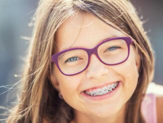 Zahnspange – wann, welche und wie teuer?