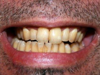 Eine Zahnverfärbung sorgt für viele Menschen für ein psychologisches Problem, jedes Lächeln wird versteckt