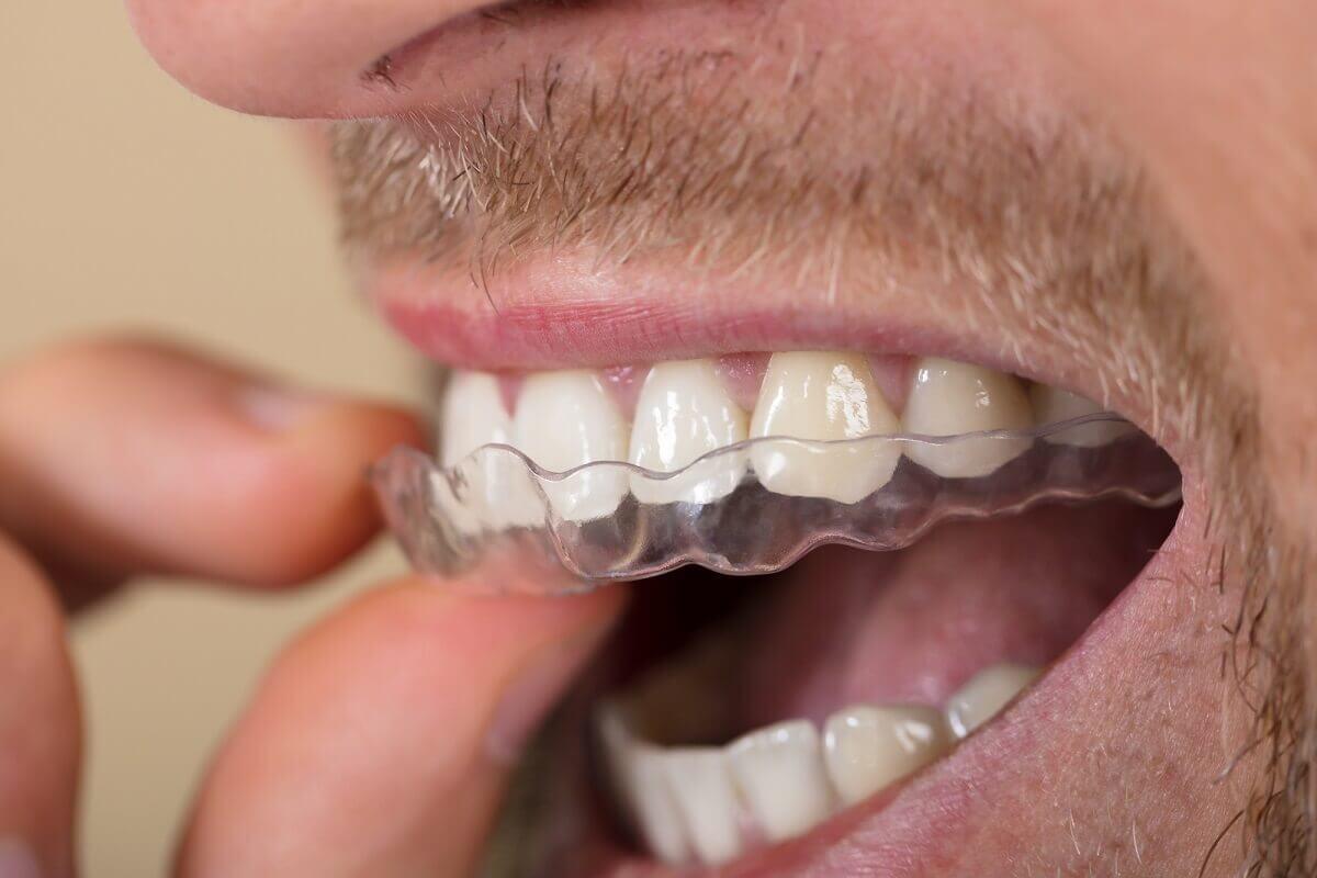 Feste Zahnspange adé – Herzlich Willkommen transparente Zahnschiene!