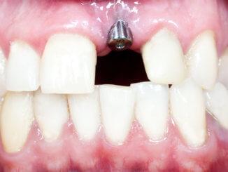 Das sollte man über Zahnimplantate wissen