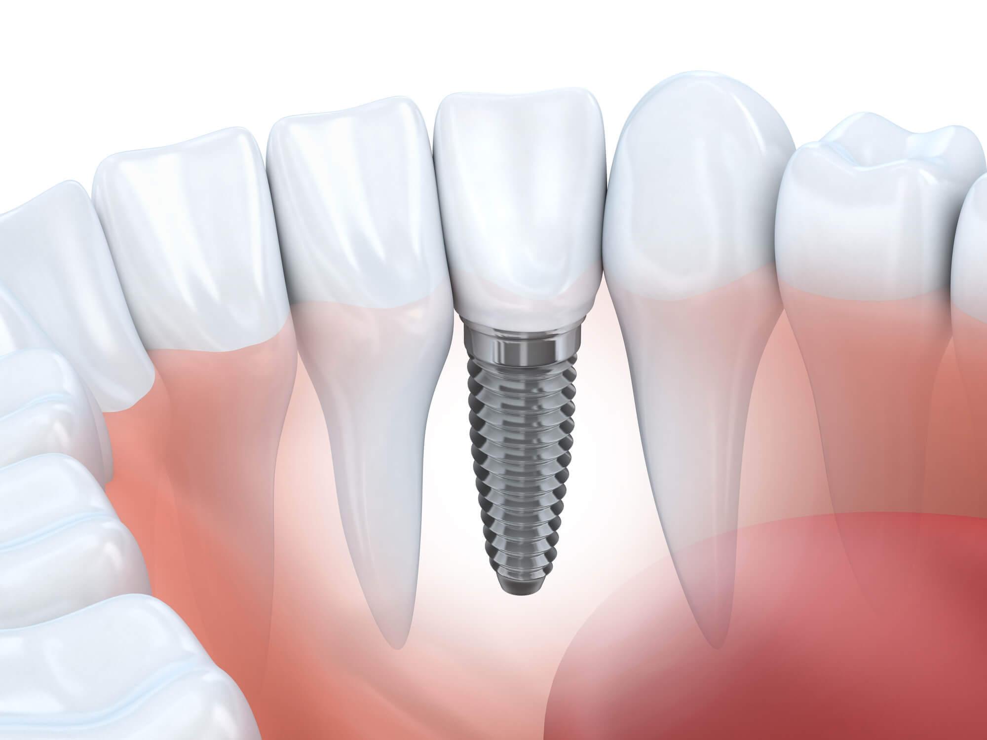 In diesem Artikel beantworten wir die wichtigsten Fragen rund um Implantate und den Kosten