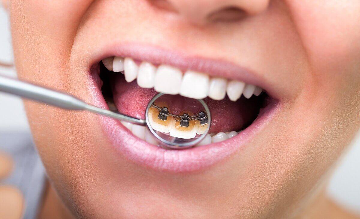 Die unsichtbare Zahnspange ist vor allem bei Erwachsenen sehr beliebt