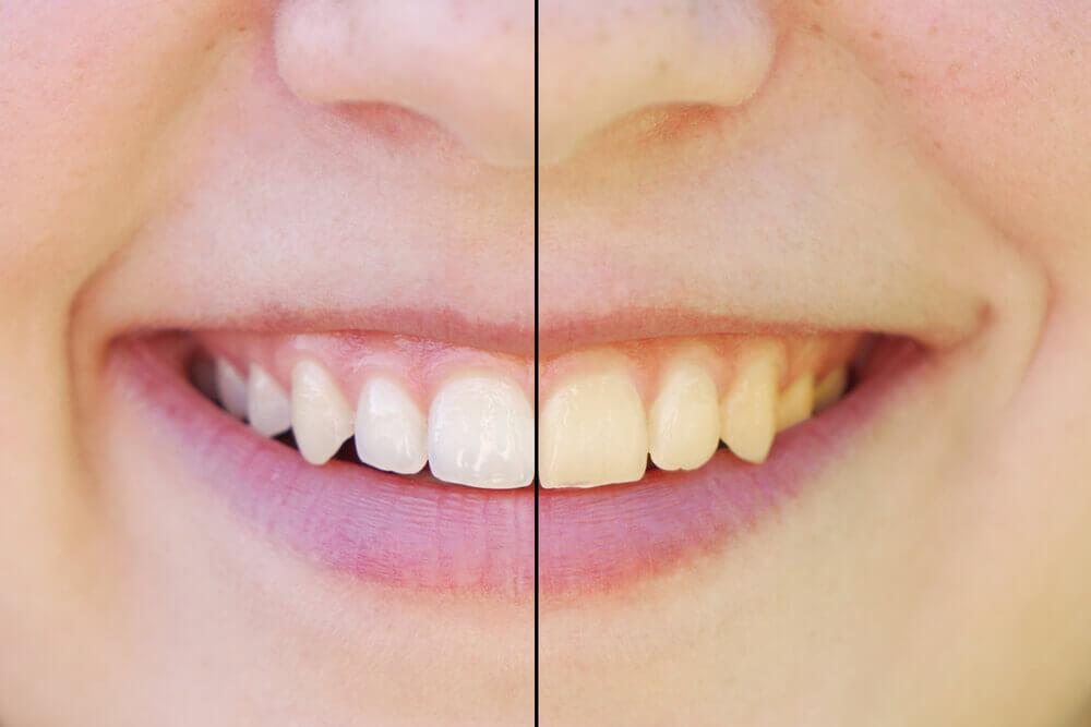 Vergilbte Zähne durch Kaffee- oder Teekonsum? Kein Problem für den Dentisten. Mit einer professionellen Zahnreinigung lässt sich schon viel erreichen. Wenn das nicht genügt, gibt es wirkungsvolle Alternativen